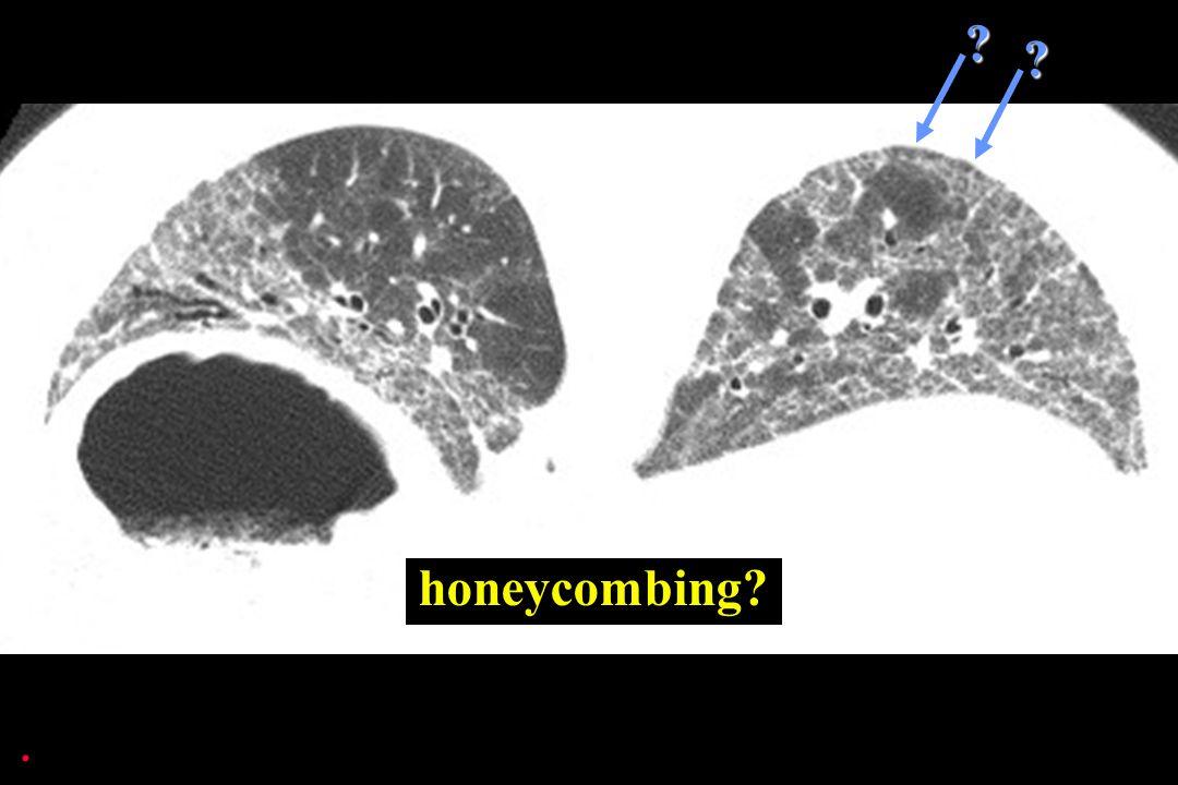 honeycombing .