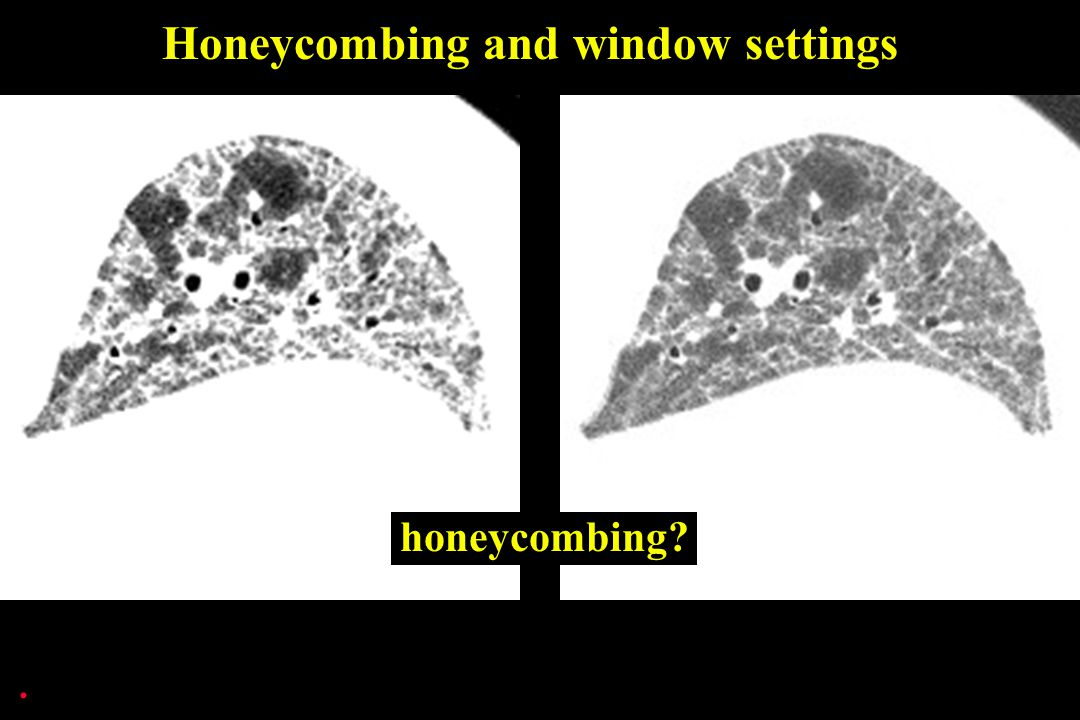 Honeycombing and window settings