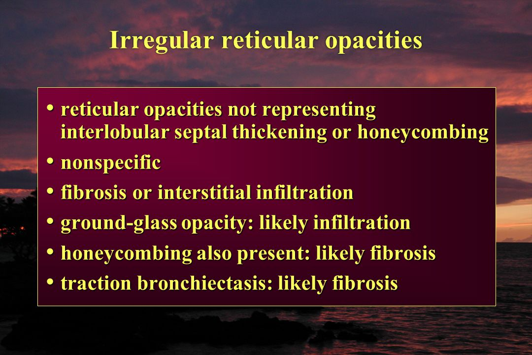 Irregular reticular opacities