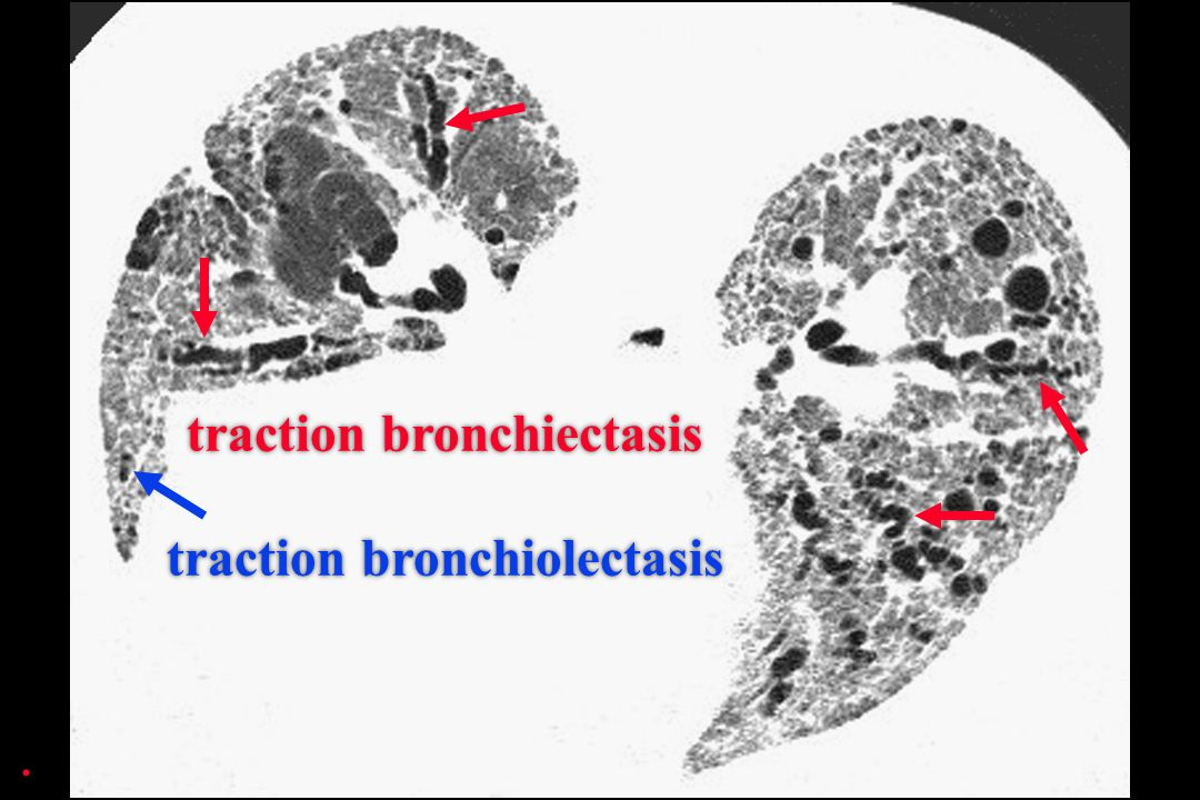 traction bronchiectasis traction bronchiolectasis