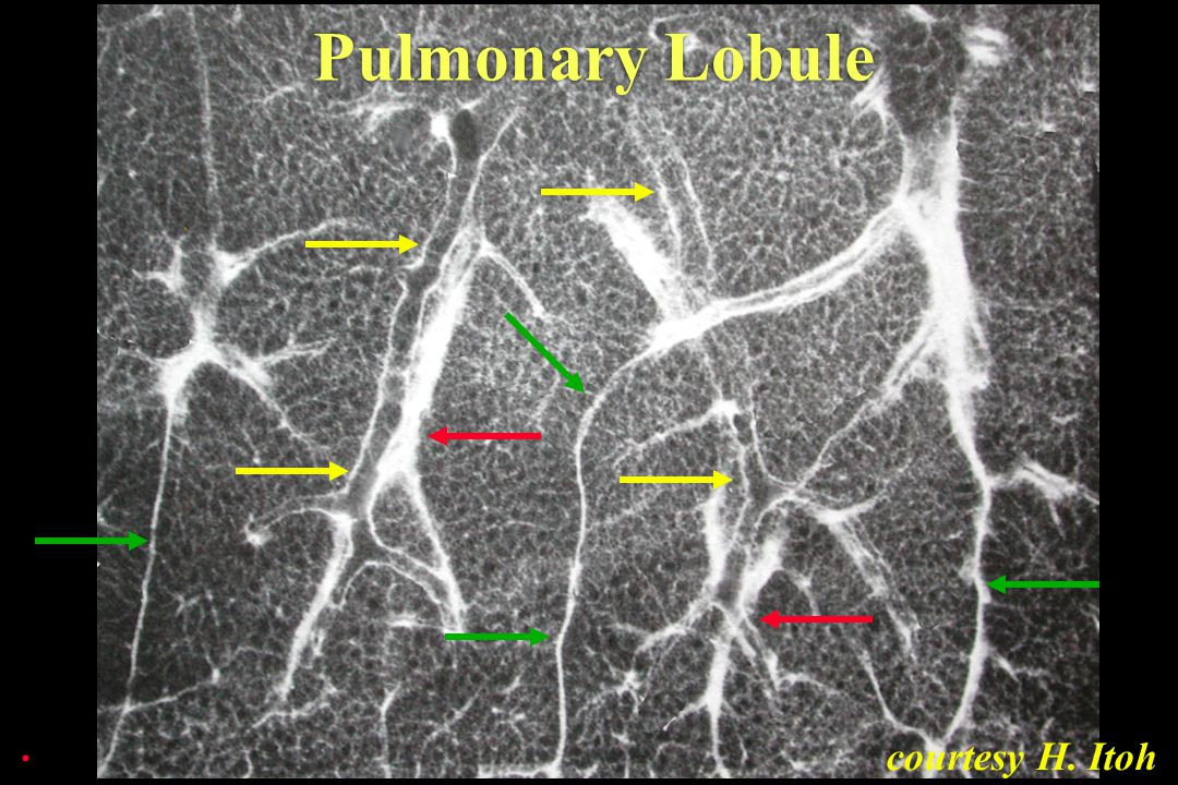 Pulmonary Lobule . courtesy H. Itoh