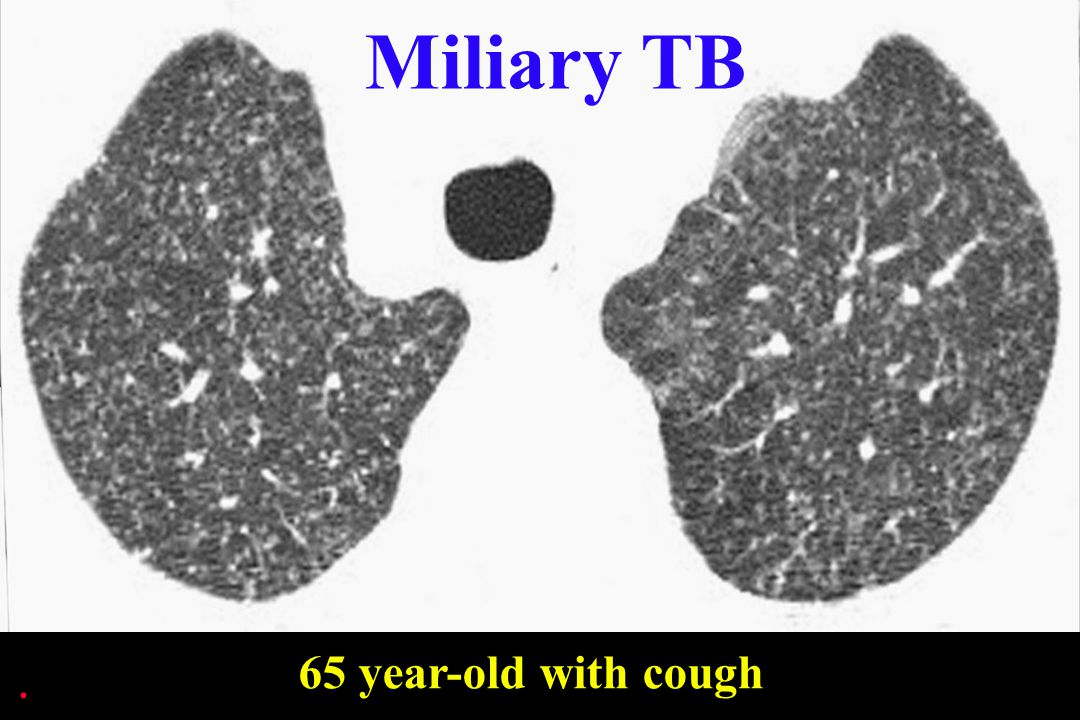 Miliary TB 65 year-old with cough .