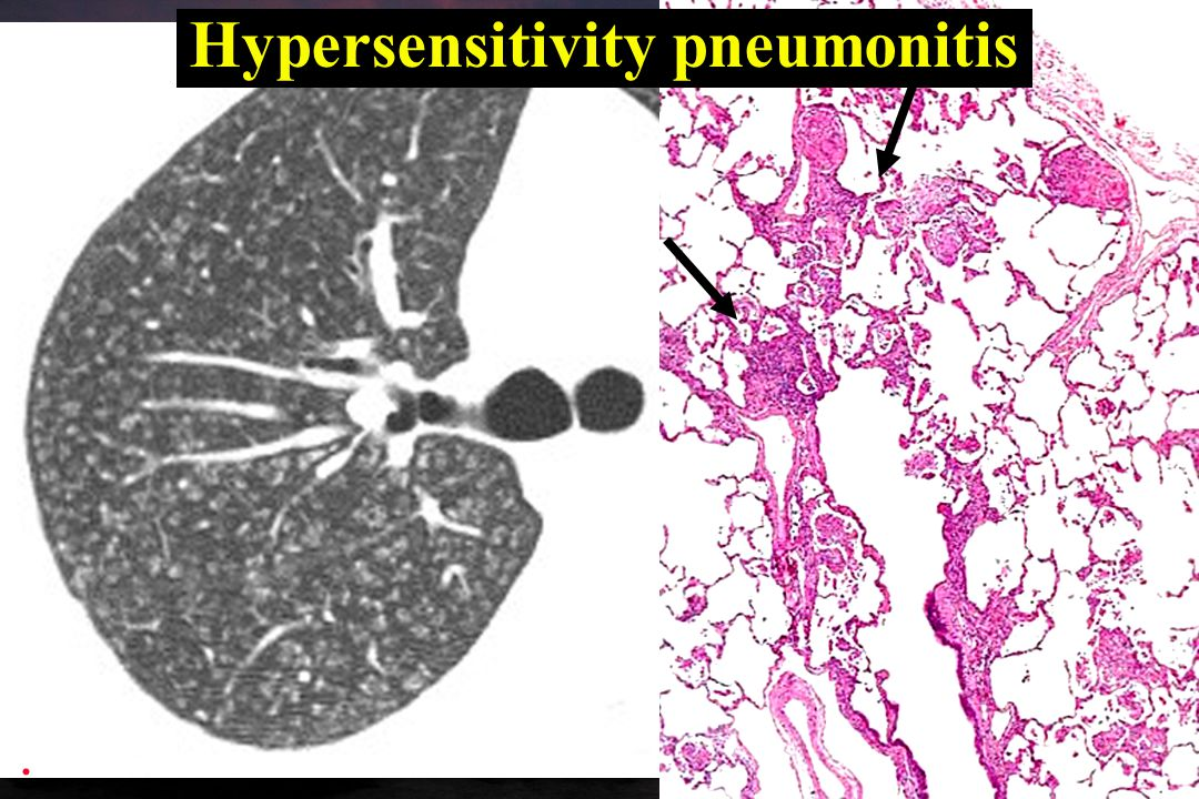Hypersensitivity pneumonitis