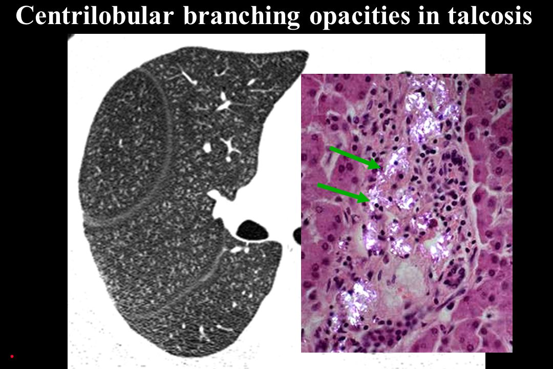 Centrilobular branching opacities in talcosis