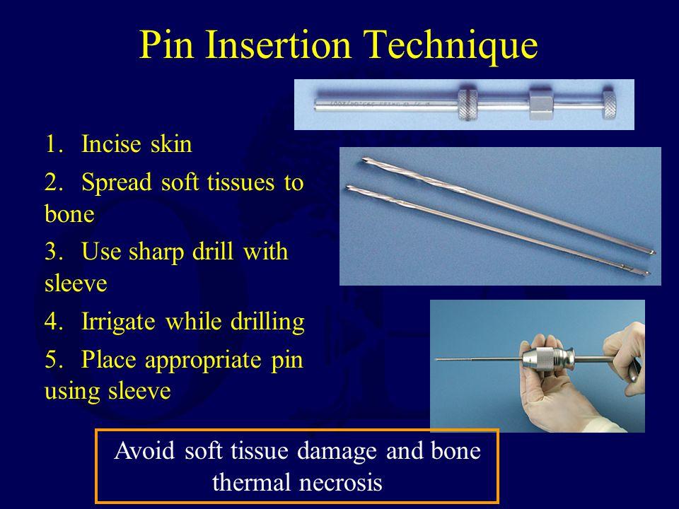 Pin Insertion Technique