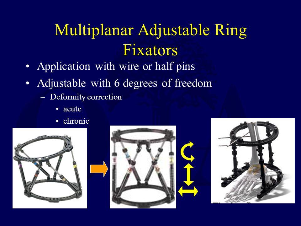 Multiplanar Adjustable Ring Fixators