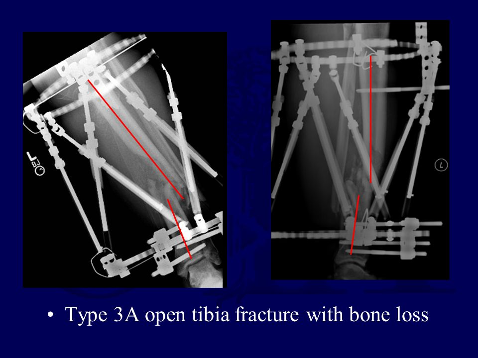 Type 3A open tibia fracture with bone loss