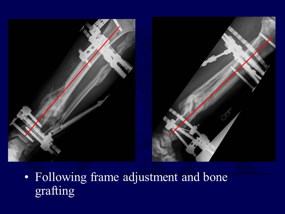 Following frame adjustment and bone grafting