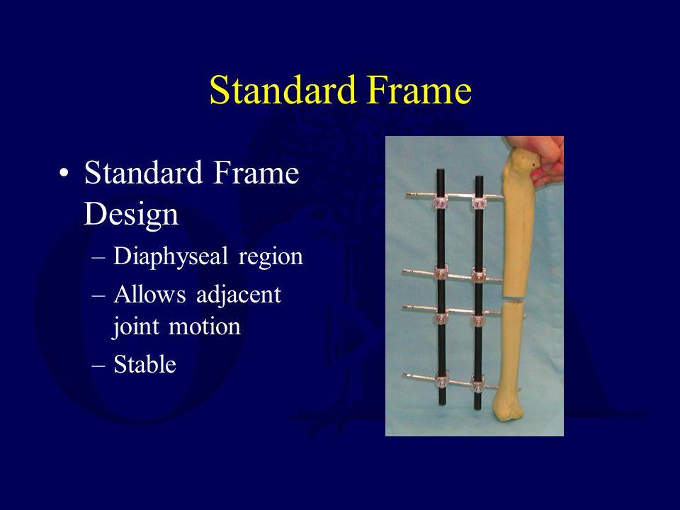 Standard Frame Standard Frame Design Diaphyseal region