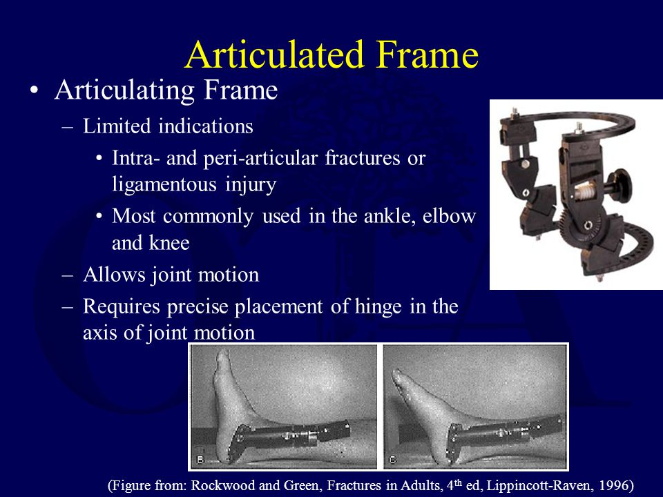 Articulated Frame Articulating Frame Limited indications