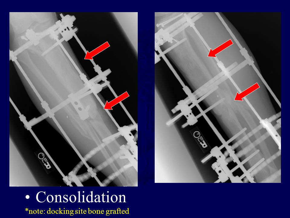Consolidation *note: docking site bone grafted
