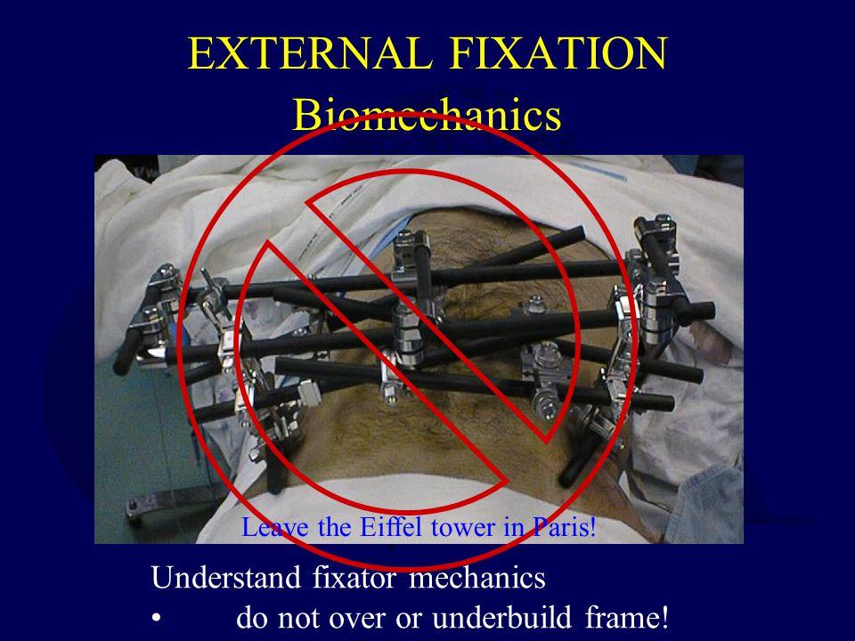 EXTERNAL FIXATION Biomechanics