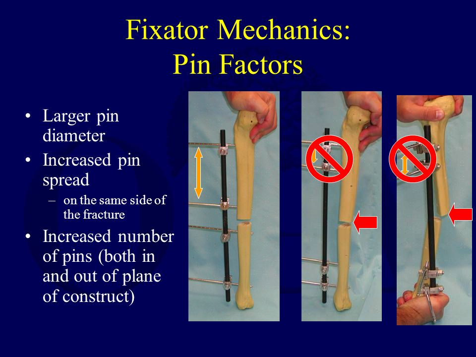 Fixator Mechanics: Pin Factors