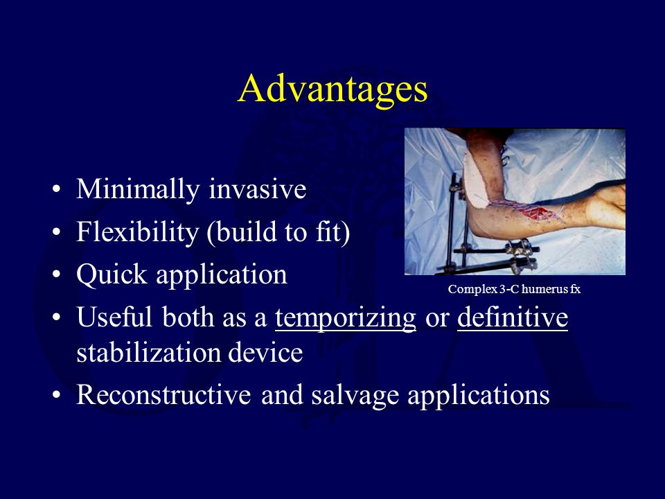 Advantages Minimally invasive Flexibility (build to fit)