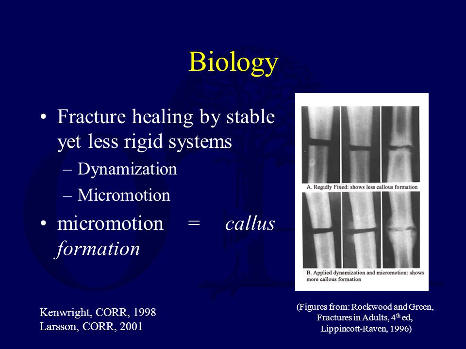 (Figures from: Rockwood and Green, Fractures in Adults, 4th ed,