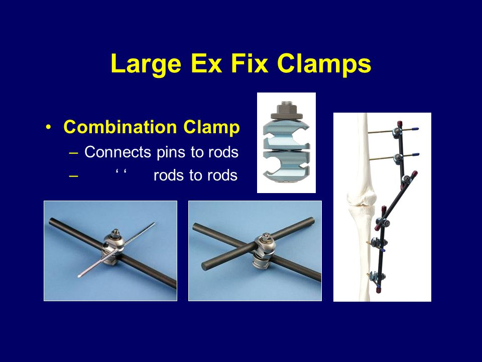 Large Ex Fix Clamps Combination Clamp Connects pins to rods