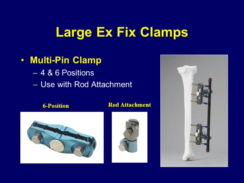 Large Ex Fix Clamps Multi-Pin Clamp 4 & 6 Positions