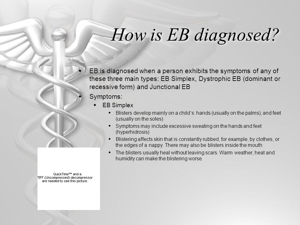 How is EB diagnosed
