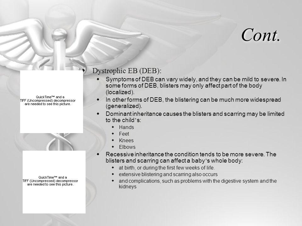 Cont. Dystrophic EB (DEB):