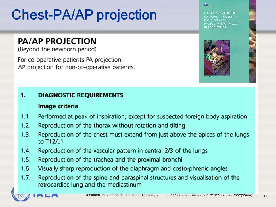 Chest-PA/AP projection