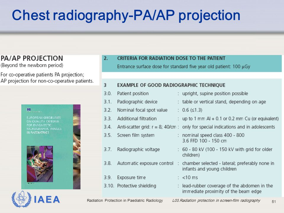 Chest radiography-PA/AP projection