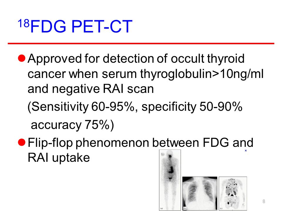 18FDG PET-CT Approved for detection of occult thyroid cancer when serum thyroglobulin>10ng/ml and negative RAI scan.