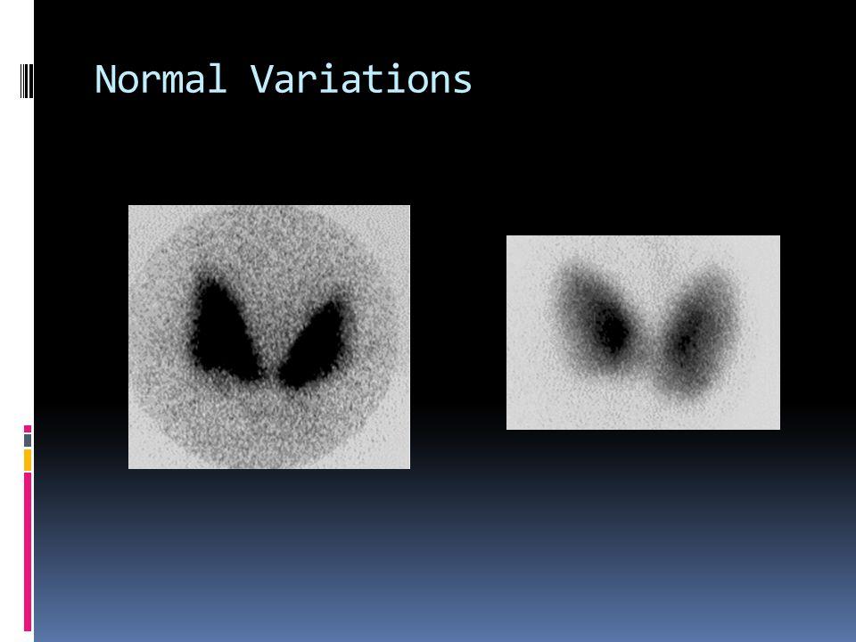 Normal Variations