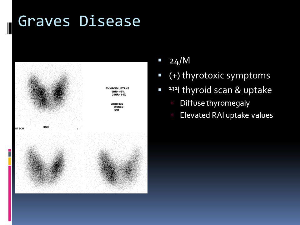 Graves Disease 24/M (+) thyrotoxic symptoms 131I thyroid scan & uptake