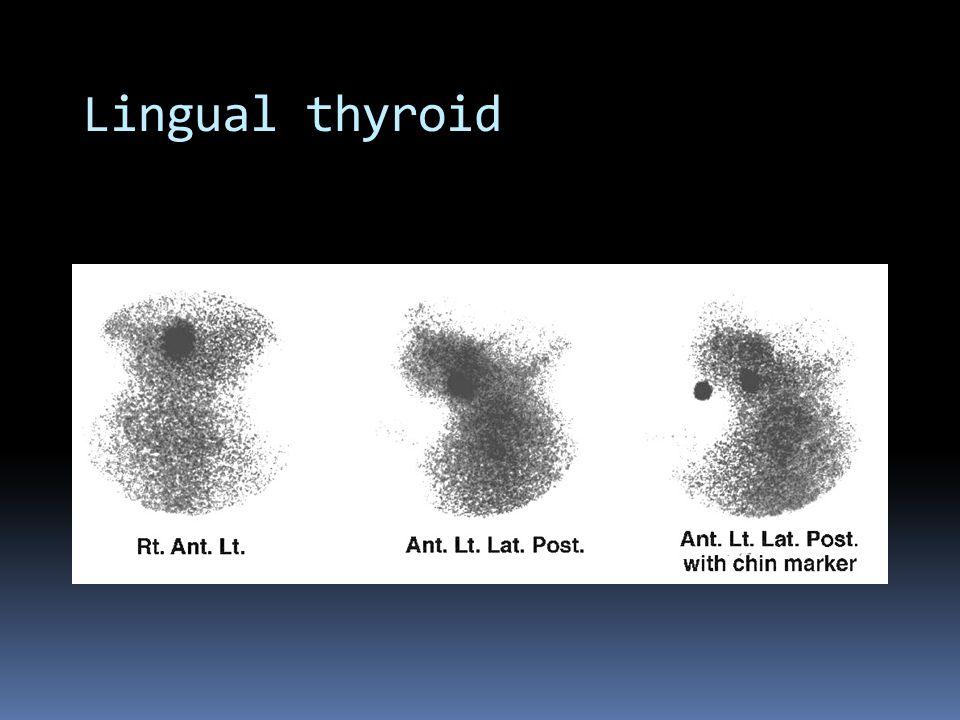 Lingual thyroid