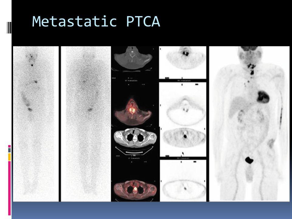 Metastatic PTCA
