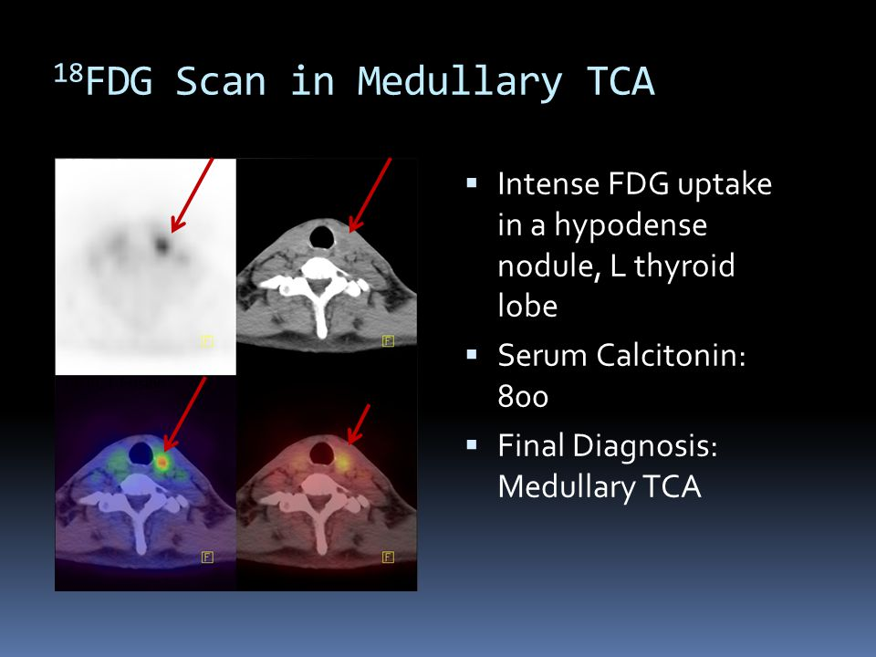 18FDG Scan in Medullary TCA