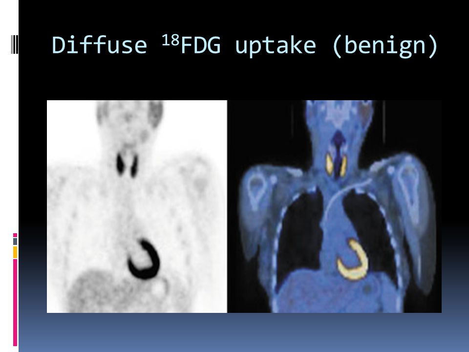 Diffuse 18FDG uptake (benign)
