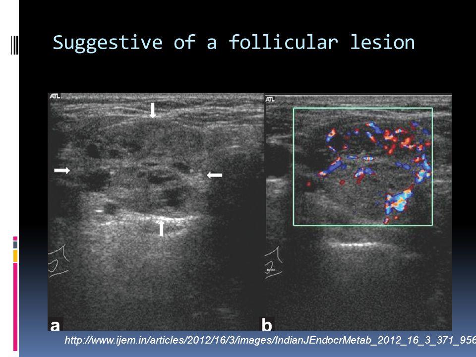 Suggestive of a follicular lesion