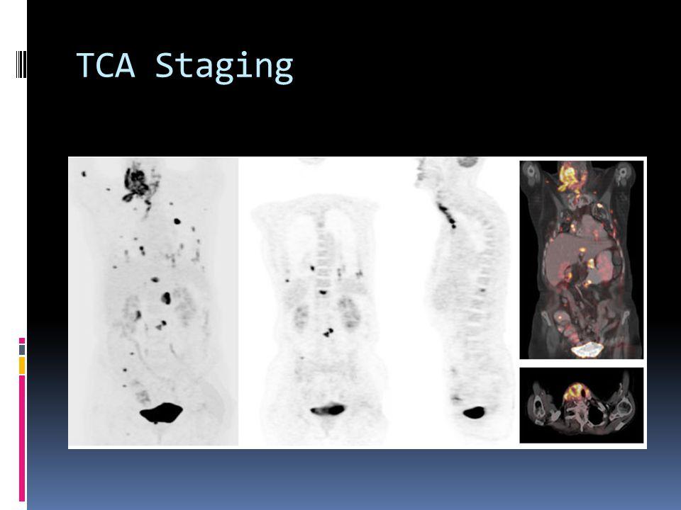 TCA Staging