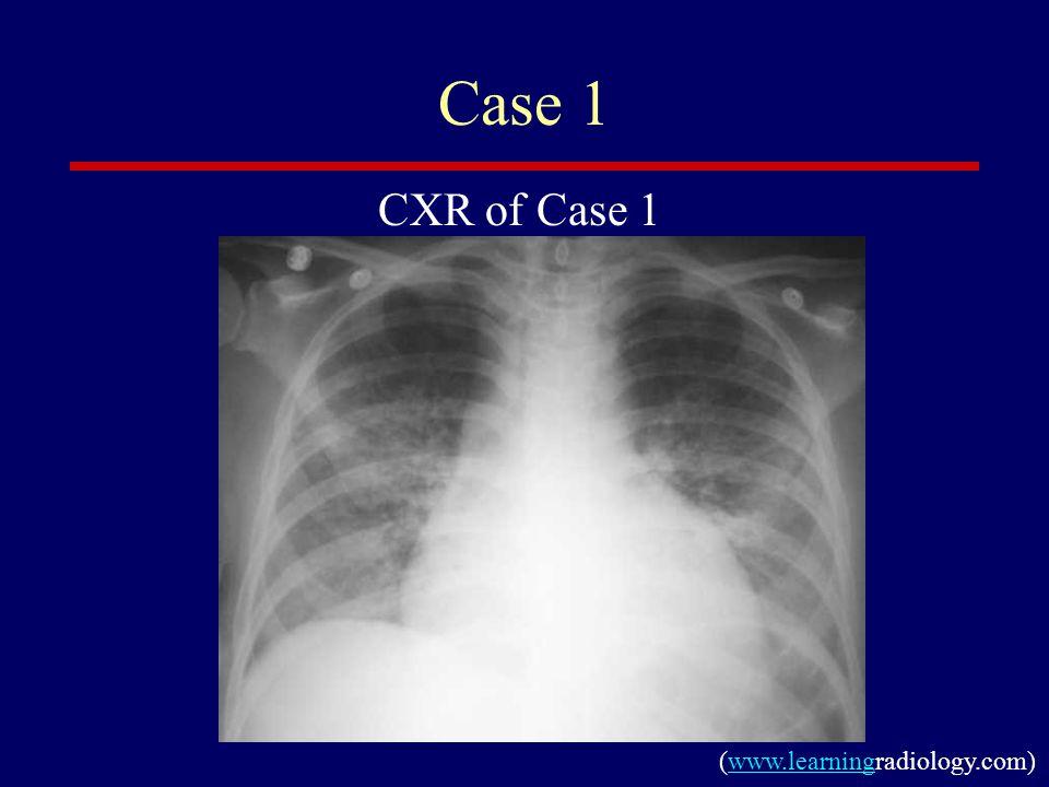 Case 1 CXR of Case 1 (www.learningradiology.com)