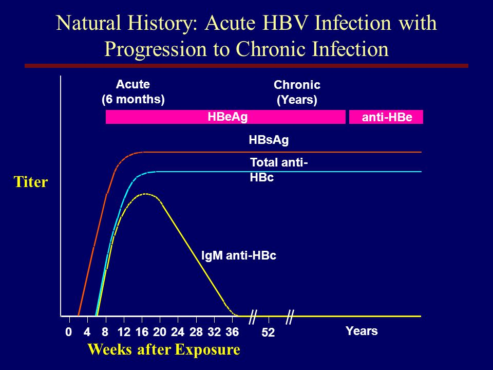 Natural History: Acute HBV Infection with Progression to Chronic Infection