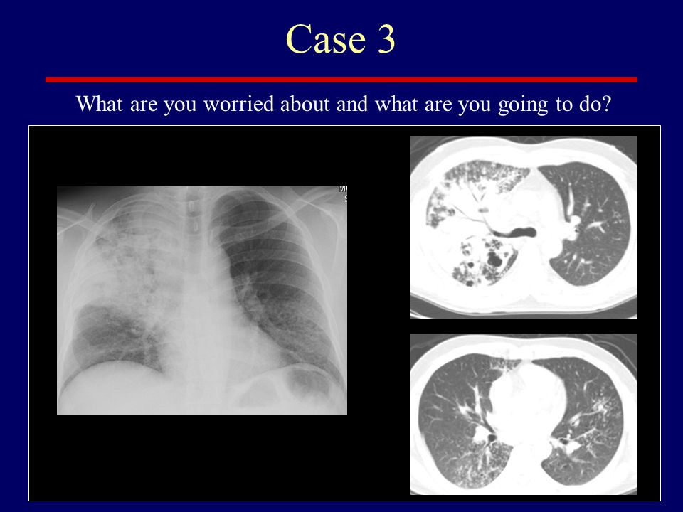 Case 3 What are you worried about and what are you going to do
