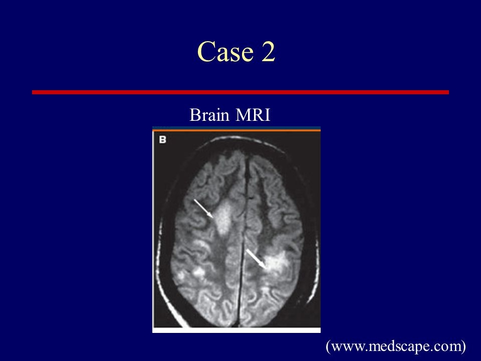 Case 2 Brain MRI (www.medscape.com)