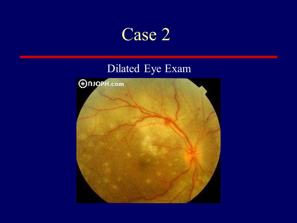 Case 2 Dilated Eye Exam