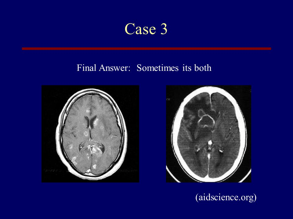 Case 3 Final Answer: Sometimes its both (aidscience.org)
