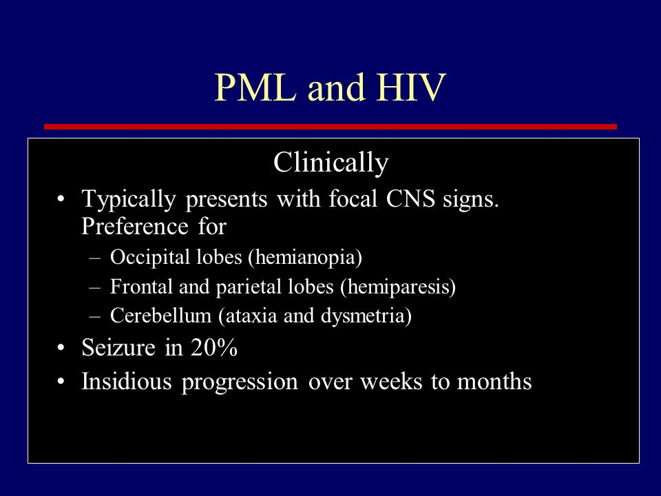 PML and HIV Clinically. Typically presents with focal CNS signs. Preference for. Occipital lobes (hemianopia)