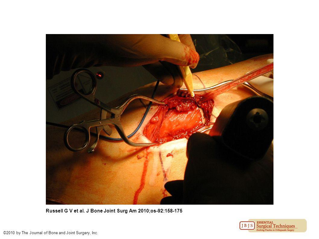 Russell G V et al. J Bone Joint Surg Am 2010;os-92:158-175