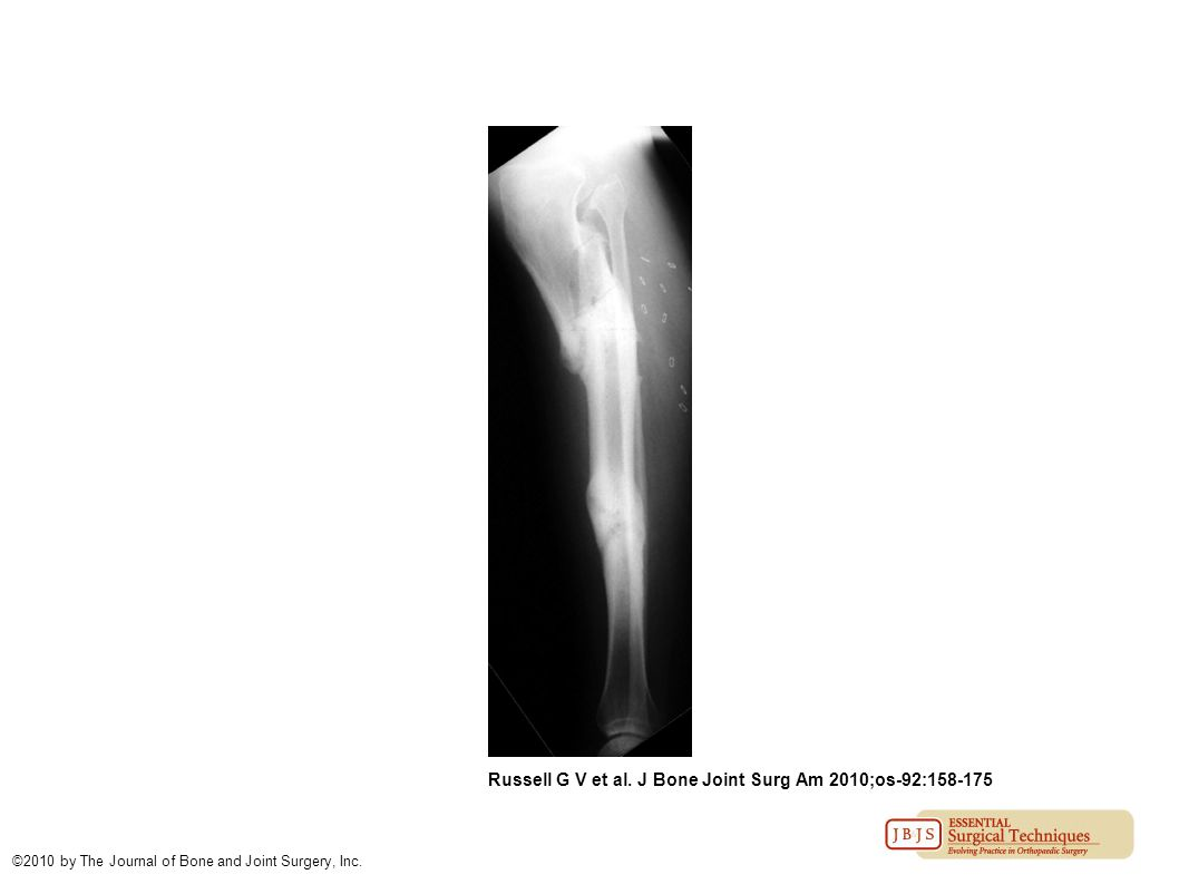 Russell G V et al. J Bone Joint Surg Am 2010;os-92:158-175