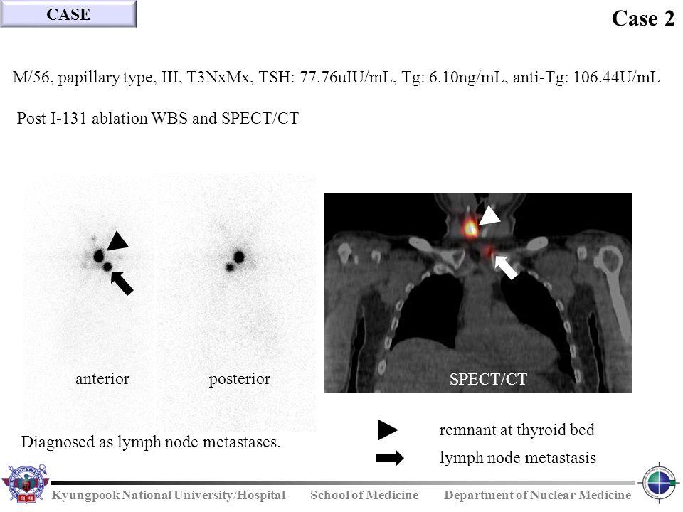 CASE Case 2. M/56, papillary type, III, T3NxMx, TSH: 77.76uIU/mL, Tg: 6.10ng/mL, anti-Tg: 106.44U/mL.