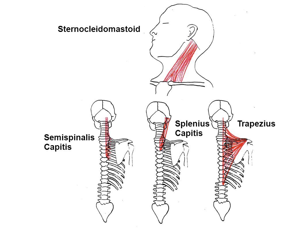 Sternocleidomastoid Splenius Capitis Trapezius Semispinalis Capitis