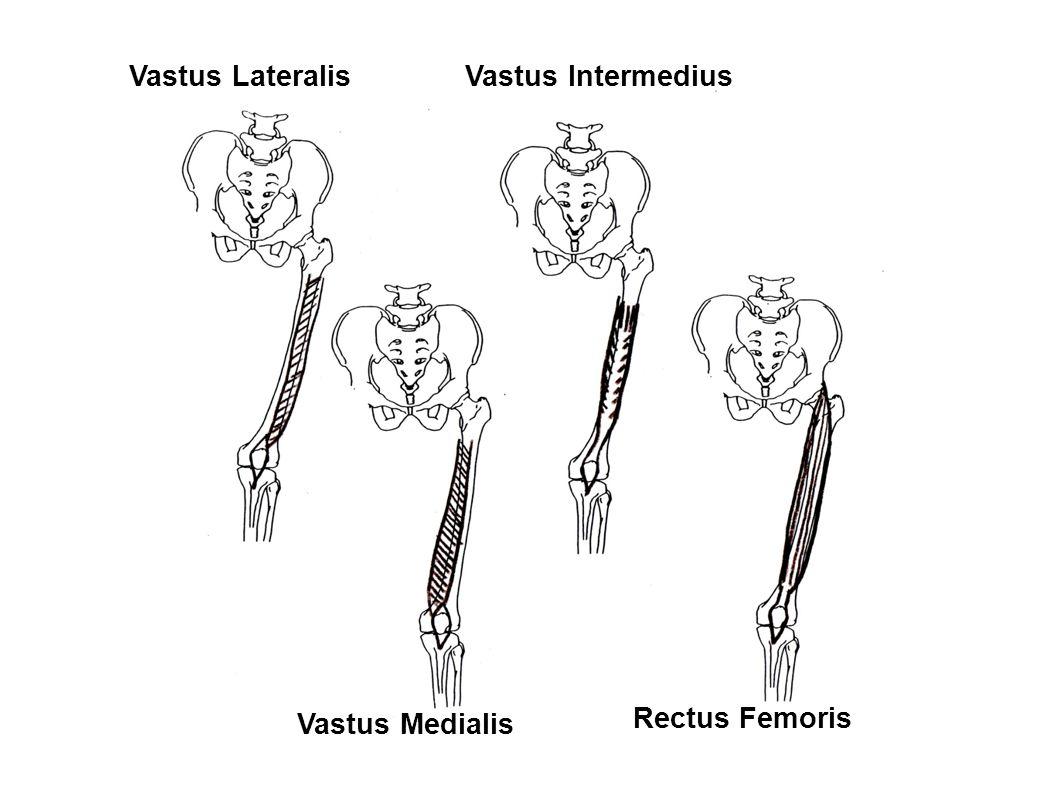 Vastus Lateralis Vastus Intermedius Vastus Medialis Rectus Femoris