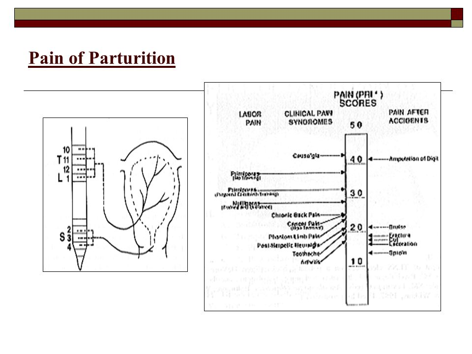Pain of Parturition