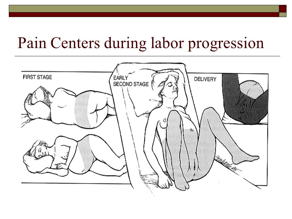 Pain Centers during labor progression