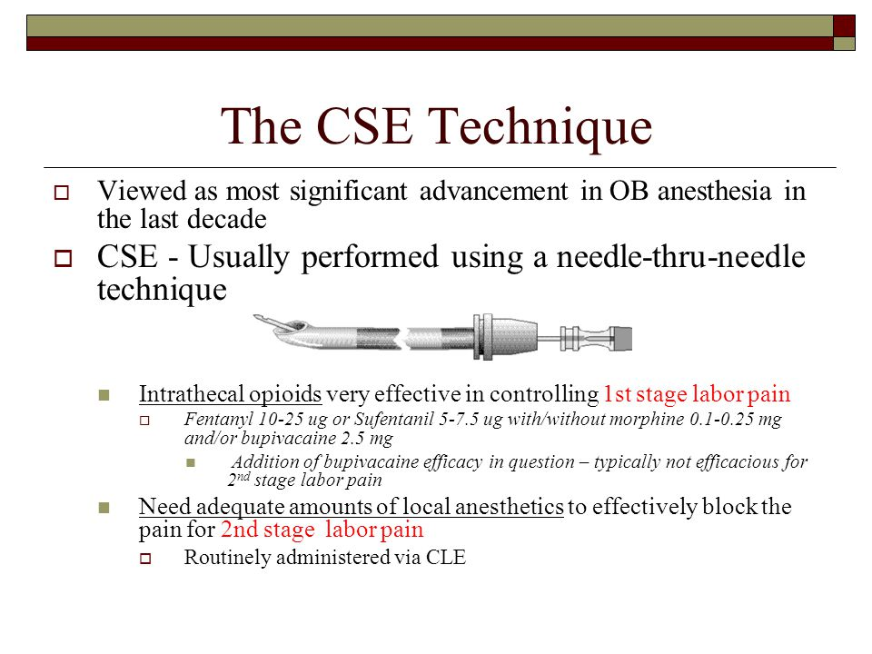 The CSE Technique Viewed as most significant advancement in OB anesthesia in the last decade.