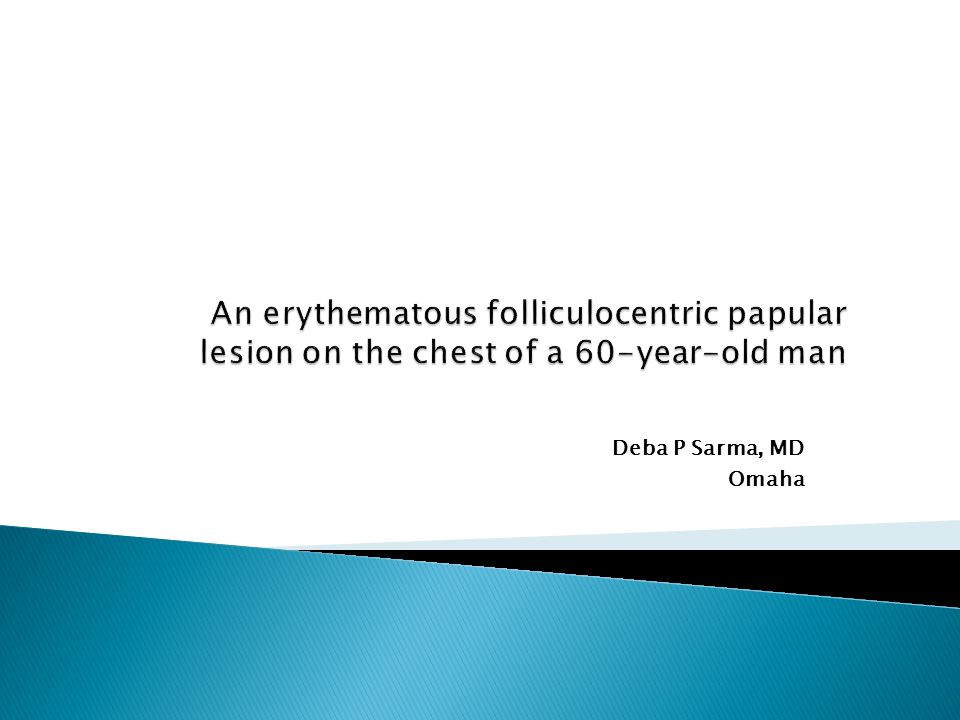 An erythematous folliculocentric papular lesion on the chest of a 60-year-old man